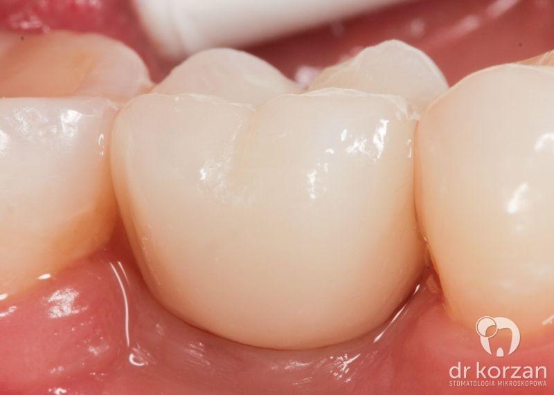 Implanty zębowe -